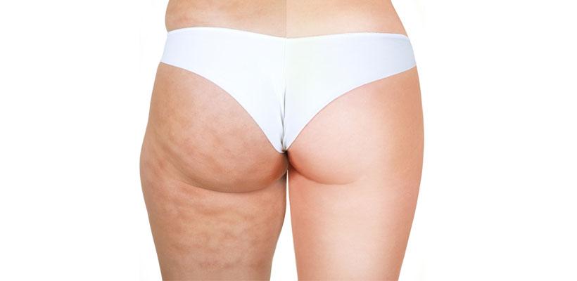operación bikini celulitis